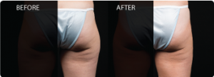 CoolSculpting Cosmetic before and after in Chesapeake Virginia at Chesapeake Vein and MedSpa