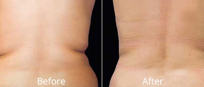 Coolsculpting Before and After Photos at Chesapeake Vein Center and Medspa in Virginia