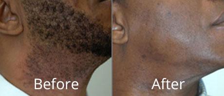 laser hair removal at chesapeake medspa in virginia