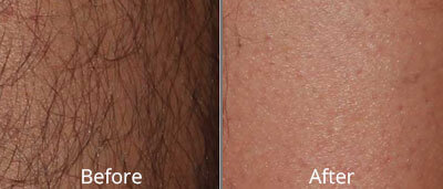 Laser Hair Removal Before and After Photos at Chesapeake Vein Center and Medspa in Virginia