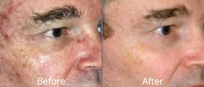 MicroLaserPeel Before and After Photos at Chesapeake Vein Center and Medspa in Virginia