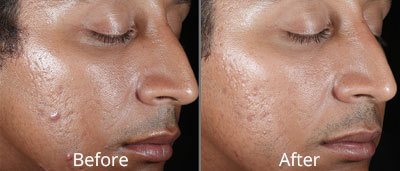 Chemical Peel before and afters at Chesapeake Vein Center and Medspa in Virginia