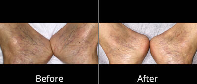 Spider Vein Treatment Before and After Photos at Chesapeake Vein Center and Medspa in Virginia