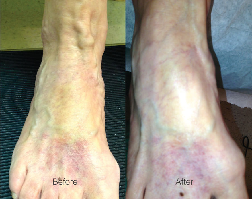 Ambulatory Phlebectomy on Ankle Veins before and afters at Chesapeake Vein Center and Medspa in Virginia