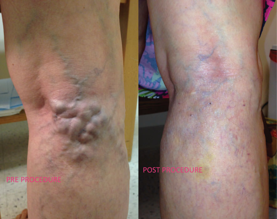 Ambulatory Phlebectomy on lower leg before and afters at Chesapeake Vein Center and Medspa in Virginia