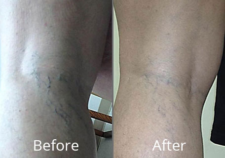 Spider Vein Treatment At Chesapeake Vein Center And Medspa