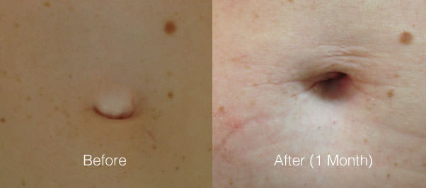 Umbilical Hernia Before and After Photos at Chesapeake Vein and Medspa in Virginia Beach, VA