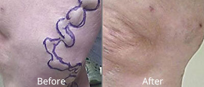 Varicose Vein Treatment Before and After Photos at Chesapeake Vein Center and Medspa in Virginia