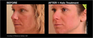 Halo offered at Chesapeake Vein Center and MedSpa in Chesapeake, VA