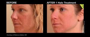 Halo offered at Chesapeake Vein Center and MedSpa in Chesapeake, VA