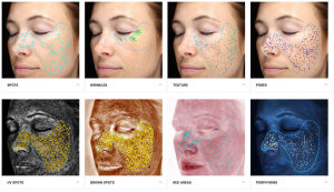Visia Complexion Analysis at Chesapeake Vein Center and MedSpa can analyze a variety of skin conditions in Chesapeake, VA for a deeper look into your skin's needs.