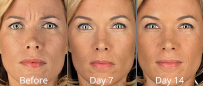 Botox before and afters at Chesapeake Vein Center and Medspa in Virginia