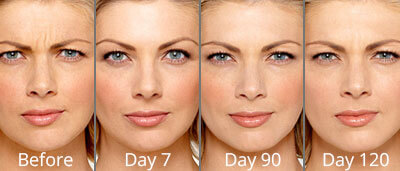 Botox before and after photos at Chesapeake Vein Center and Medspa in Virginia