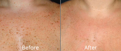 Photofacial before and afters at Chesapeake Vein Center and Medspa in Virginia