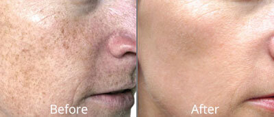 Photo Facial before and afters at Chesapeake Vein Center and Medspa in Virginia