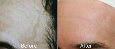 Photofacials before and after photos at Chesapeake Vein Center and Medspa in Virginia