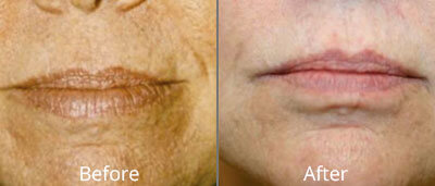 Photofacials before and after pics at Chesapeake Vein Center and Medspa in Virginia