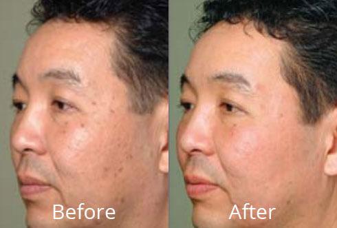 Fractional Laser Skin Resurfacing At Chesapeake Vein