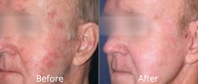 Fractional Laser Skin Resurfacing before and afters at Chesapeake Vein Center and Medspa in Virginia