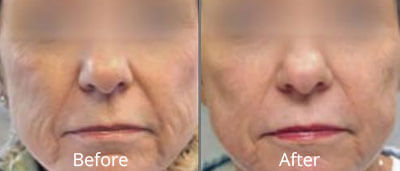 Fractional Laser Skin Resurfacing before and after photos at Chesapeake Vein Center and Medspa in Virginia