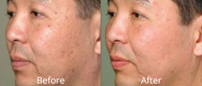 Fractional Laser Skin Resurfacing before and after pics at Chesapeake Vein Center and Medspa in Virginia
