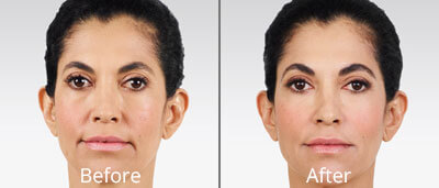 Juvéderm before and afters at Chesapeake Vein Center and Medspa in Virginia