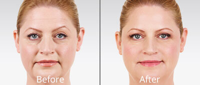Juvéderm before and after photos at Chesapeake Vein Center and Medspa in Virginia