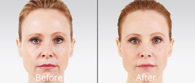 Juvéderm before and after pics at Chesapeake Vein Center and Medspa in Virginia