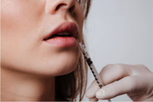 Full lips are always in style, but they've recently hit a new level of popularity with lip augmentation.