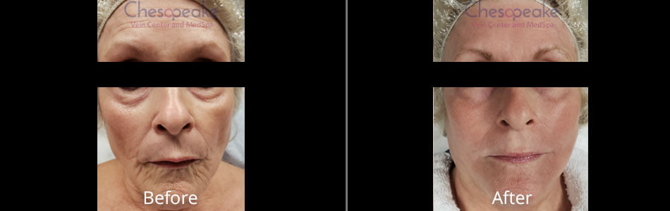 Halo Fractional Laser Before and After Photos at Chesapeake Vein Center and Medspa in Virginia