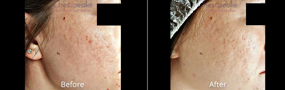 Micro-Needling Before and After Photos at Chesapeake Vein Center and Medspa in Virginia