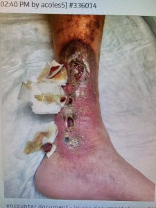 venous reflux leg ulcers before