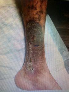 venous reflux leg ulcers after