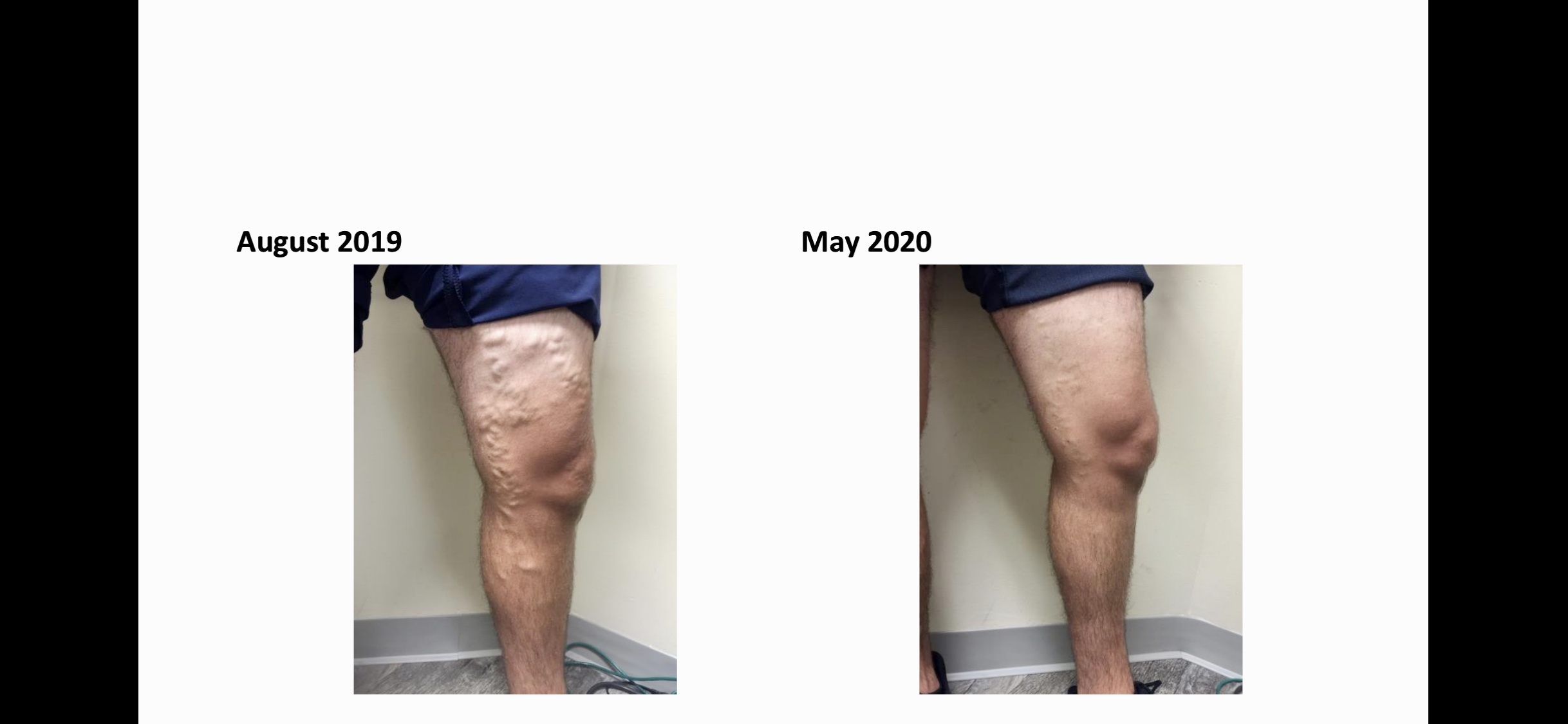 Before and after leg vein treatment