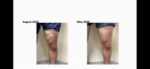 vein treatments before & after